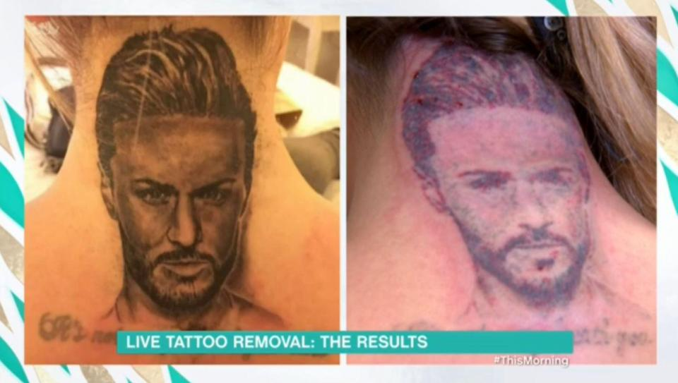 Holly Hagan Is Having Her Ex Boyfriend's Face Tattoo Removed From Back Of Her Neck Live On This Morning!